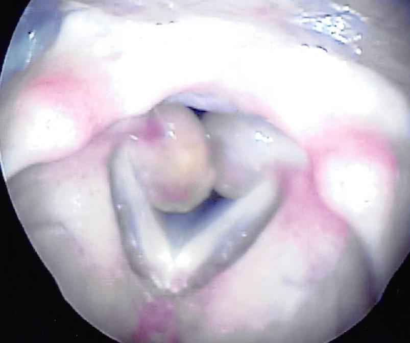 喉頭肉芽腫症