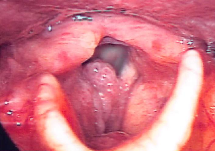 違和感 ポリープ 喉