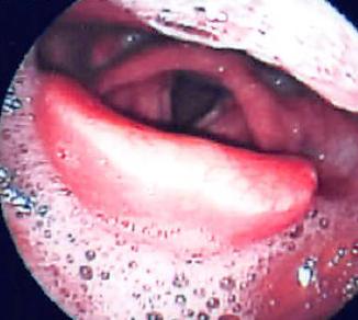 急性喉頭蓋炎