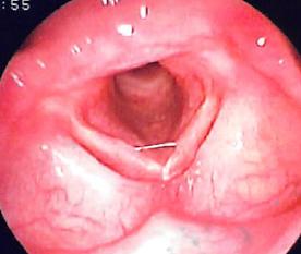 急性声門下喉頭炎