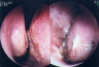 鼻中隔湾曲症1