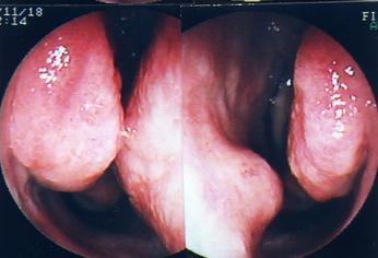 鼻中隔湾曲症2